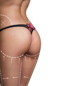 Woman with correction lines in black thong. On white background
